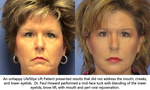 Life style face lift revision surgery