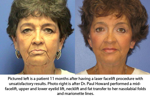 Dr. Paul Howard - Facelift Plastic Surgeon Birmingham, Alabama