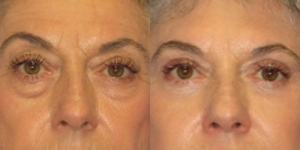 Eyelid Surgery Before & After by Dr. Paul S. Howard