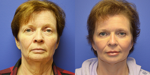 facelift swelling